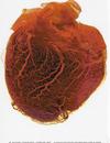 Heart2300dpi_2